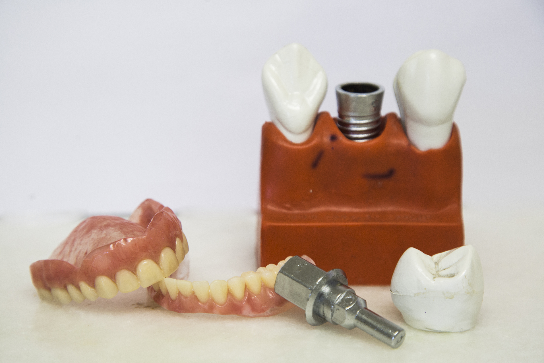 Mais de 700 mil impantes dentários são realizados com produtos de ...